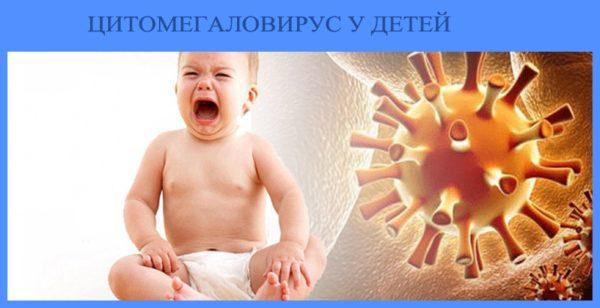цитомегаловируса у детей