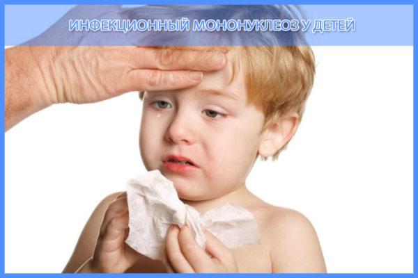 инфекционный мононуклеоз
