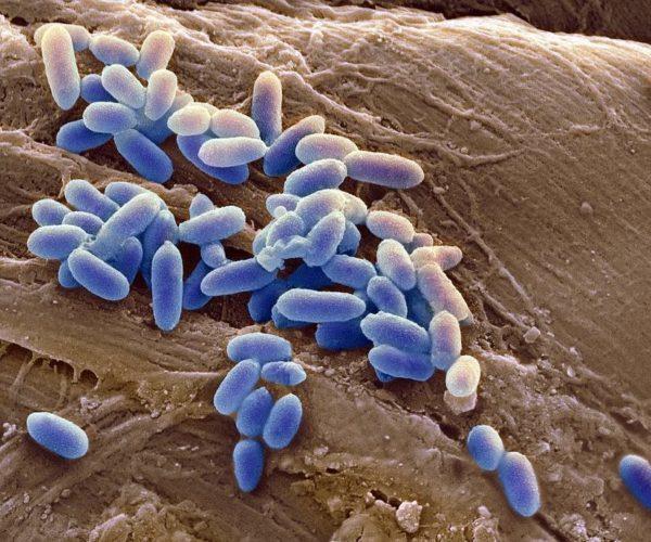 Инфекция микробы