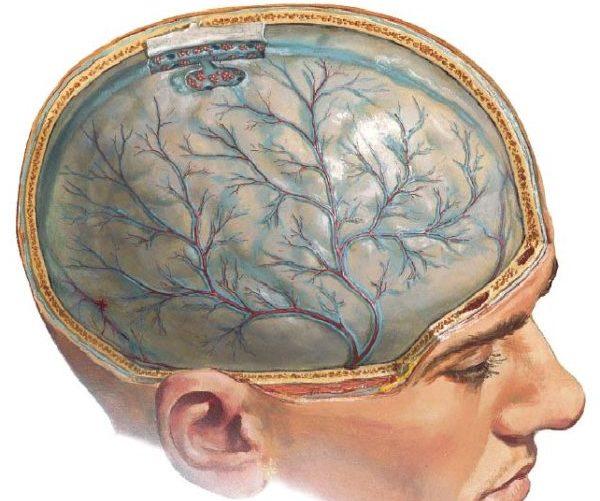 Менингококцемия менингит