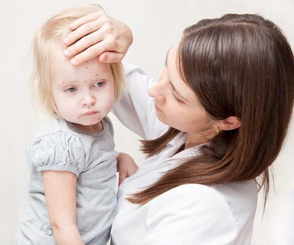 Инфекционный мононуклеоз сыпь на какой день